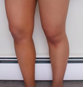 Cupid's Pulse Article: Leg Contouring is the Newest Beauty Trend for Summer